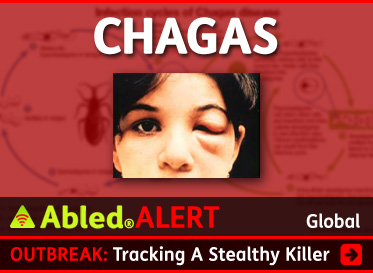 AbledALERT link box shows a photo of a girl with a swollen eyelid called Romaña's Sign, one of the obvious signs of infection from Chagas Disease. The headline reads Outbrea: Chagas - tracking a Stealthy killer. Click here to go to our ongoing special coverage of Chagas Disease.