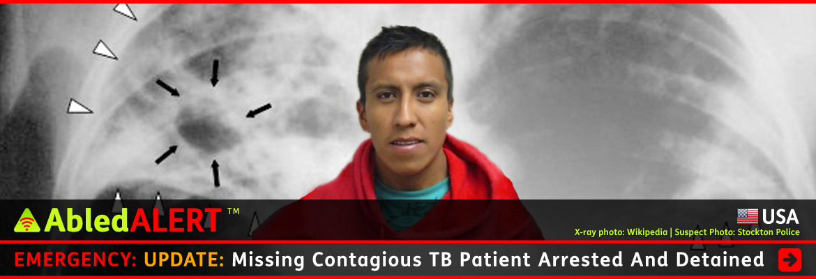 AbledALERT-USA Post Link Banner shows a photo of 25 year old Eduardo Rosas Cruz who hails from a part of Mexico known for drug-resistant tuberculosis. His photo is set against a black and white x-ray of human lungs that show a tuberculosis infection. The headline reads: Emergency: UPDATE: Missing Contagious TB Patient Arrested And Detained. CLick here to go to the Post.