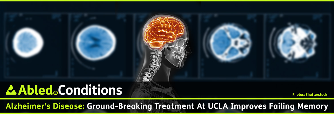 AbledConditions post banner shows a background graphics montage of slides from a brain CT scan slightly blurred behind a side profile view of an X-ray of a person's head and shoulders with the brain area highlighted with an orange glow. The headline reads: AbledConditions: Alzheimer's Disease: Ground-breaking treatment at UCLA improves failing memory.