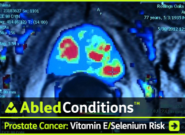 AbledConditions Post link Banner shows a digital display of an MRI scan of a prostate with certain areas showing blue, green or red. The headline reads: AbledConditions: Prostate cancer: Vitamin E and Selenium Supplements May Double Your Risk For It. Click here to go to the post.