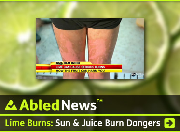 AbledNews Headlines link box shows a closeup photograph of a young girl's legs showing second degree burns with a headline that reads: Lime Burns: Sun & juice burn dangers. Click to go to story.