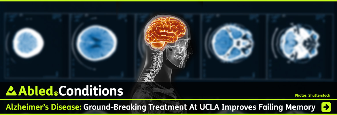 AbledConditions post link banner shows a background graphics montage of slides from a brain CT scan slightly blurred behind a side profile view of an X-ray of a person's head and shoulders with the brain area highlighted with an orange glow. The headline reads: AbledConditions: Alzheimer's Disease: Ground-breaking treatment at UCLA improves failing memory. Click here to go to the post.