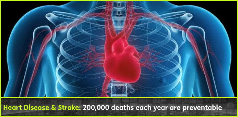 AbledHealth story Banner shows a computer-generated image of a red heart and arteries visible through a bluish x-ray effect of a human chest that shows the ribcage and the outline of the shoulders and arms with the title: heart Disease and Stroke: 200 thousand deaths each year are preventable