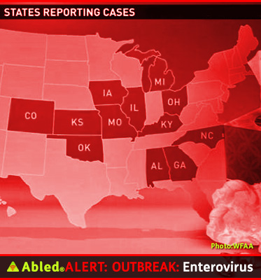AbledALERT: Outbreak: Enterovirus. Graphic shows 12 states that are reporting cases and/or asking the Centers For Disease Control for help. They are Alabama, Colorado, Georgia, Indiana, Illinois, Kansas, Kentucky, Michigan,Missouri, North Carolina, Ohio, and Oklahoma.