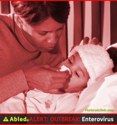 AbledALERT: Outbreak: Enterovirus - What are the symptoms? Photo shows a mother tending to her sick child in bed , wiping her nose with a tissue and with a cold facecloth on her forehead.