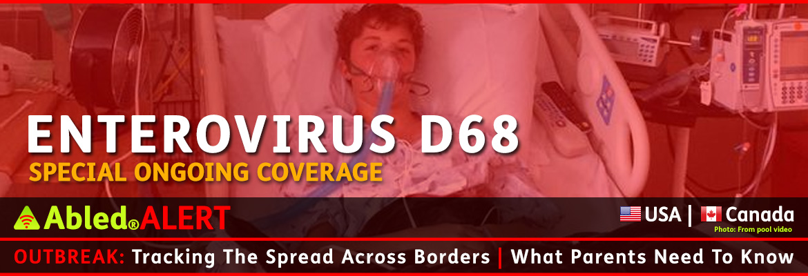 AbledALERT-Outbreak post banner shows 13 year old Will Cornejo of Lone Tree, Colorado breathing with the help of an oxygen mask while lying in a hospital bed, while text in the foreground reads: Enterovirus D68: Special Ongoing Coverage. The headline reads: Outbreak: Tracking the Spread across Borders | What parents need to know.