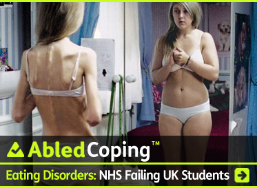 AbledCoping Post Banner shows an anorexic teenage girl in a bra and panties looking in the mirror and seeing herself as fat. The headline reads: Eating Disorders: UK Charity Finds National Health Service 'Failing' UK Students. Click here to go to the post.