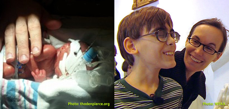 Photo on the left shows Ben Pierce as a tiny infant in the hospital born 4 months premature, small enough to fit into one adult hand. The second photo on the right shows Ben with his eyes closed and his mother Heidi smiling behind him as he's about to see one of his wishes, Van Gogh's painting of haystacks at the Dallas Museum of Art that opened early to let Ben have a private showing.