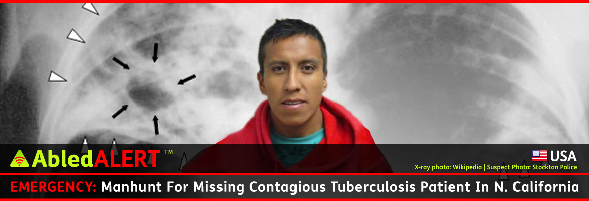 AbledALERT-USA Post Banner shows a photo of 25 year old Eduardo Rosas Cruz who hails from a part of Mexico known for drug-resistant tuberculosis. His photo is set against a black and white x-ray of human lungs that show a tuberculosis infection. The headline reads: Emergency: Manhunt For Missing Contagious Tuberculosis Patient in Northern California.