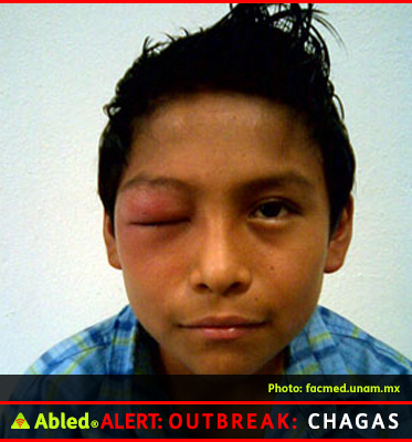 AbledALERT Outbreak: Chagas graphic shows a close-up of an adolescent boy's face with his right eye swollen shut. This is called Romaña's sign and is a marker of acute Chagas disease. The swelling is due to bug feces being accidentally rubbed into the eye and eyelids.