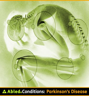 AbledConditions: Parkinson's Disease: Photo shows a side view of a man sitting bent over with his head almost touching his knees. The image looks like half an x-ray and half a photo with larges circles and pain points superimposed over the brain, shoulders, spine, hips and knees to illustrate the parts of the body affected by Parkinson's Disease.