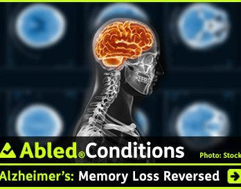 AbledConditions post link box shows a background graphics montage of slides from a brain CT scan slightly blurred behind a side profile view of an X-ray of a person's head and shoulders with the brain area highlighted with an orange glow. The headline reads: AbledConditions: Alzheimer's: Memory loss reversed. Click here to go to the post.