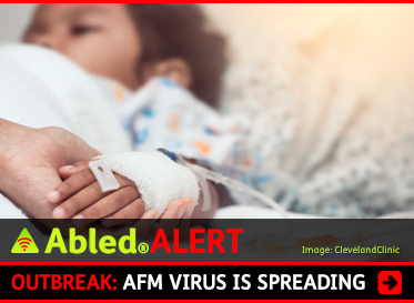 AbledALERT: Outbreak: AFM Virus Is Spreading. Image: Photo shows a child lying in a hospital bed as a parent holds their bandaged hand that has an IV in it.