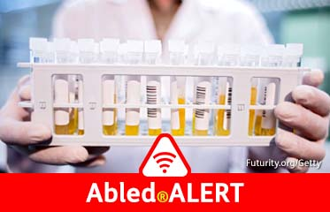 Abled.ALERT: Lab worker holds a rack of test tubes filled with blood plasma.