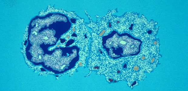 A microscopic photo of T-cells stained blue