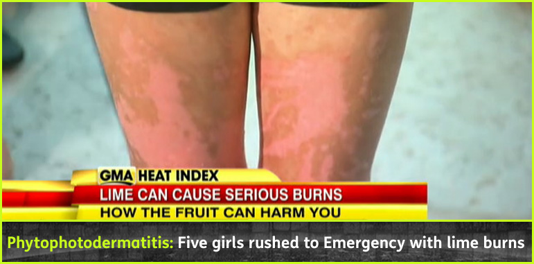 AbledNews story headline banner shows a close up of a young girls legs with second degree burns with the headline: Phytophotodermatitis: Five girls rushed to Emergency with lime burns